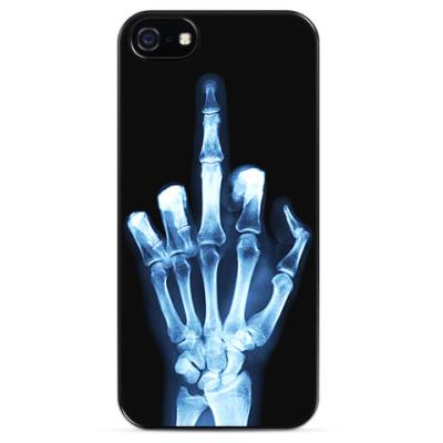 Чехол для iPhone Рентген среднего пальца